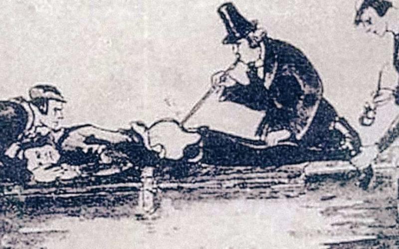 Странните и ужасяващи медицински инструменти в човешката история